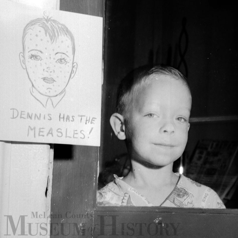 Dennis Mindler with Measles, 1958.